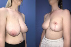 bilateral breast reduction surgery perth oblique 2