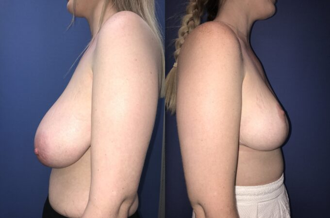 bilateral breast reduction surgery perth side