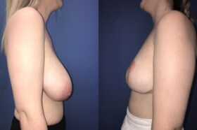 bilateral breast reduction surgery perth side 2