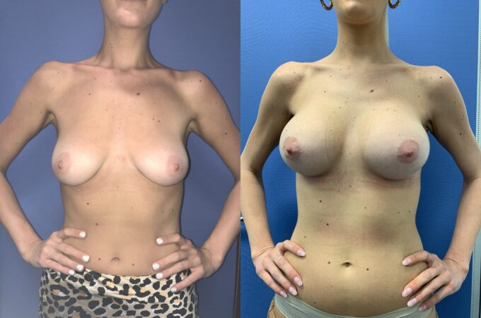 bilateral submuscular breast augmentation surgery perth front