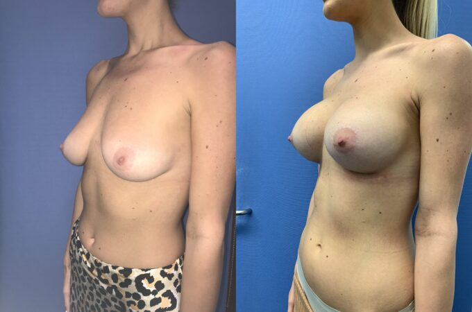 bilateral submuscular breast augmentation surgery perth oblique