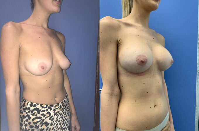 bilateral submuscular breast augmentation surgery perth oblique 2