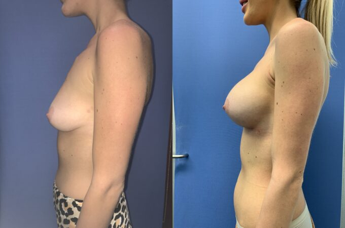 bilateral submuscular breast augmentation surgery perth side