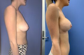 bilateral submuscular breast augmentation surgery perth side 2