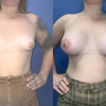 Patient 45 Breast Augmentation Perth (front)