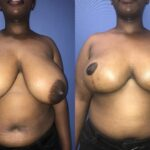Patient 16 Breast Reduction Perth (front)