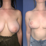Patient 15 Breast Reduction Perth (front)