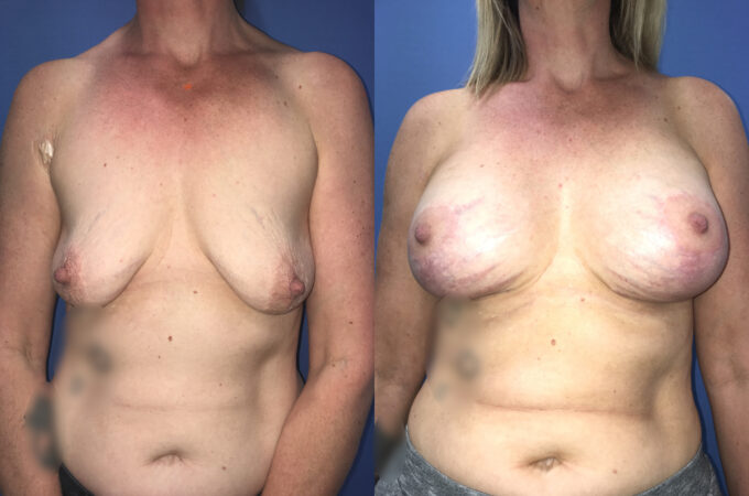 Patient 6 Breast Lift and Augmentation Perth (front)