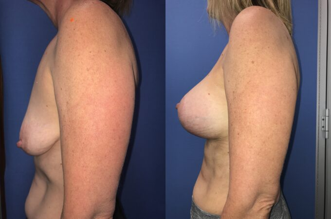 Patient 6 Breast Lift and Augmentation Perth (angle a)