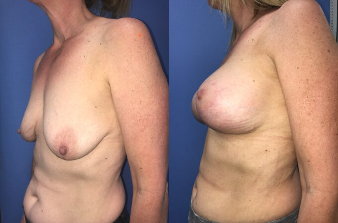Patient 6 Breast Lift and Augmentation Perth (angle b)