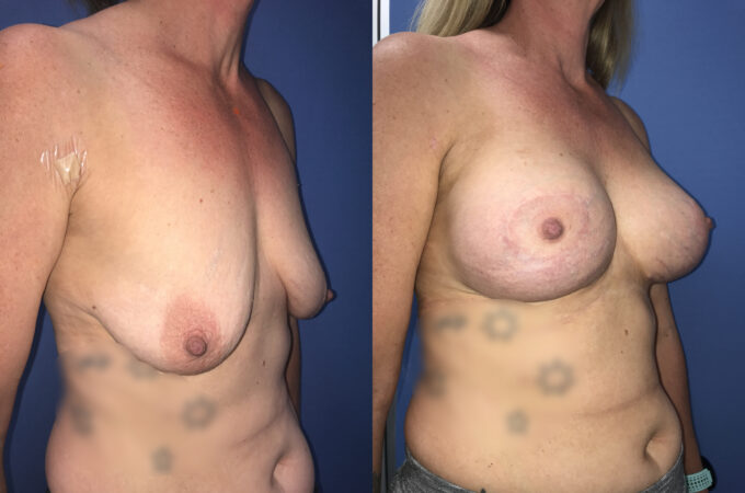 Patient 6 Breast Lift and Augmentation Perth (side a)