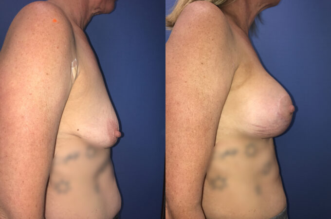Patient 6 Breast Lift and Augmentation Perth (side b)