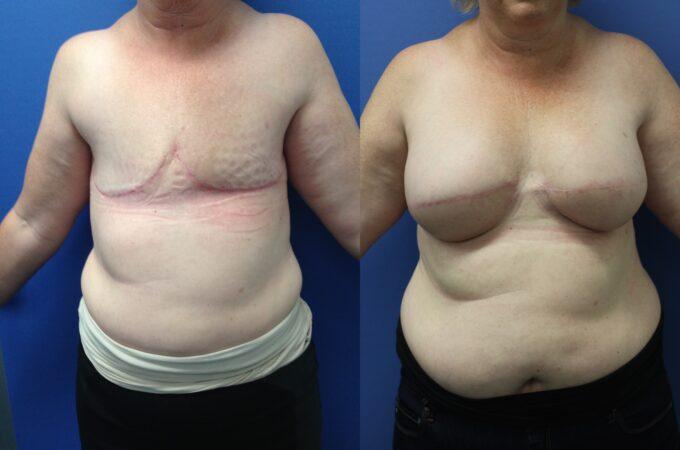 Patient 1 Breast Reconstruction Perth (1)