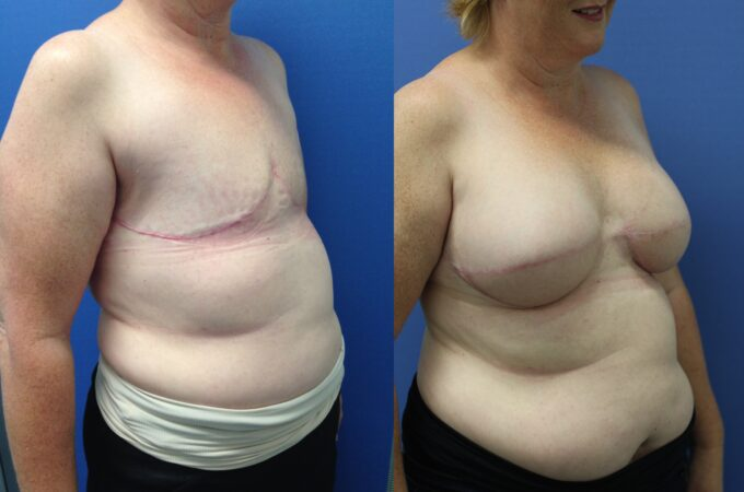 Patient 1 Breast Reconstruction Perth (2)