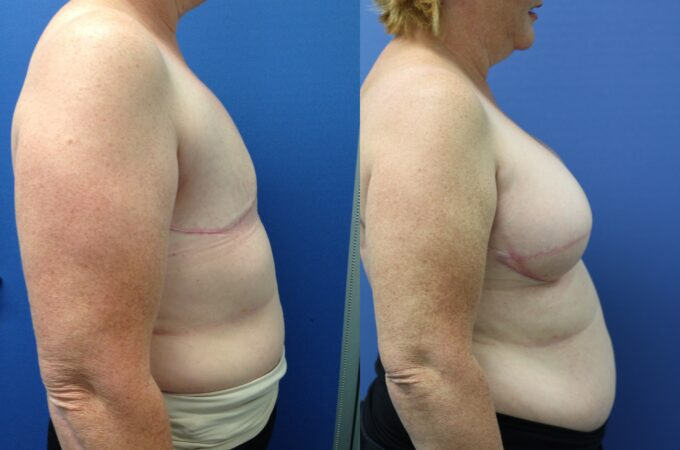 Patient 1 Breast Reconstruction Perth (3)