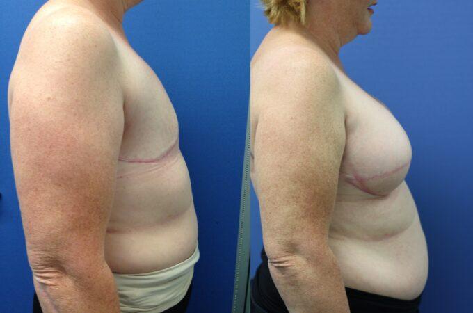 Patient 1 Breast Reconstruction Perth (3)