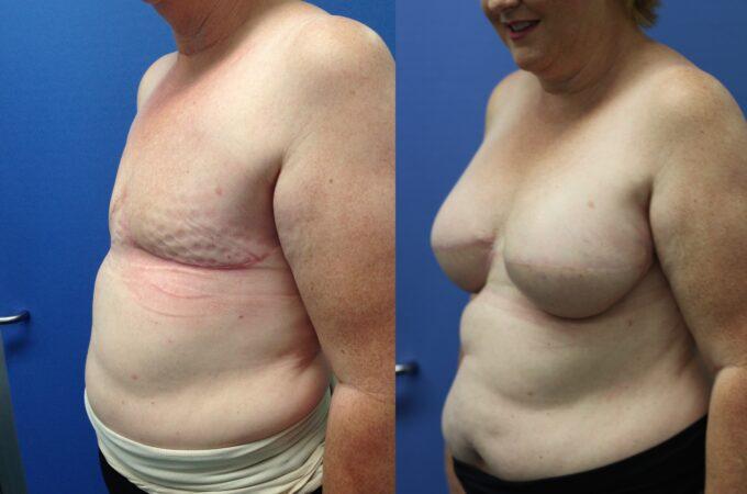 Patient 1 Breast Reconstruction Perth (4)