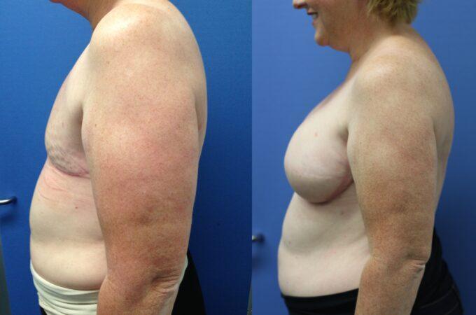 Patient 1 Breast Reconstruction Perth (5)