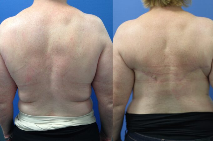 Patient 1 Breast Reconstruction Perth (6)