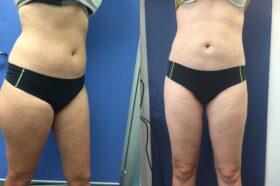 Patient 1 Liposuction Perth (front)