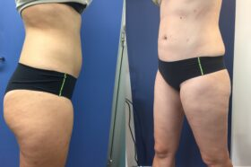 Patient 1 Liposuction Perth (angle b)