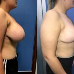 Patient 11 Breast Reduction Perth (side b)