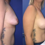 Patient 36 Breast Augmentation Perth (angle b)