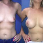 Patient 36 Breast Augmentation Perth (front)