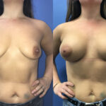 Patient 34 Breast Augmentation Perth (front)