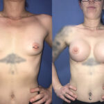 Patient 33 Breast Augmentation Perth (front)