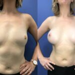 Patient 30 Breast Augmentation Perth (front)