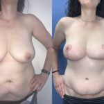 Patient 2 Breast Lift Perth (front)