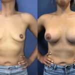 Patient 28 Breast Augmentation Perth (front)