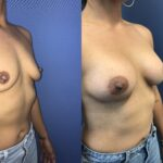 Patient 28 Breast Augmentation Perth (angle b)