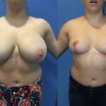 Patient 7 Breast Reduction Perth (front)