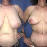 Patient 5 Breast Reduction Perth (front)