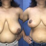 Patient 6 Breast Reduction Perth (front)