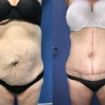 Patient 1 radical abdominoplasty Perth (front)