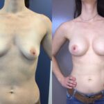 Patient 22 breast augmentation Perth (front)