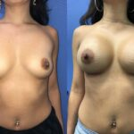 Patient 12 breast augmentation Perth (front)