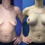 Patient 11 breast augmentation Perth (front)