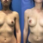Patient 8 breast augmentation Perth (front)