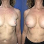 Patient 7 bilateral submuscular dual plane breast augmentation Perth (front)