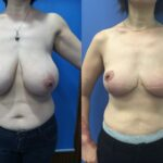 Patient 3 bilateral breast reduction Perth (front)