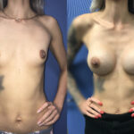 Patient 26 breast augmentation Perth (front)