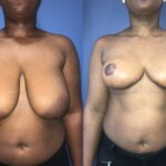 patient one bilateral breast reduction front