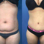 Patient 9 radical abdominoplasty Perth (front)