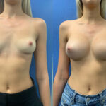 breast implant removal and replacement perth front