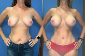 radical abdominoplasty / sub glandular augmentation patient perth front