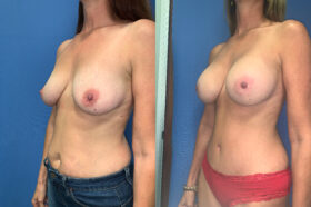 radical abdominoplasty / sub glandular augmentation patient perth oblique 2